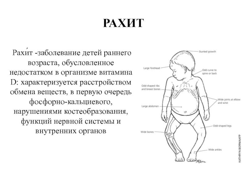 Рахит у кур и цыплят: симптомы, диагностика, лечение, меры профилактики